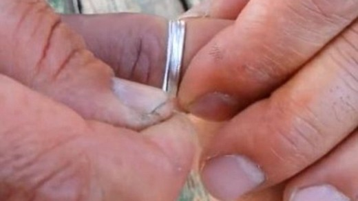 Amazing trick to remove a ring that is stuck on your finger
