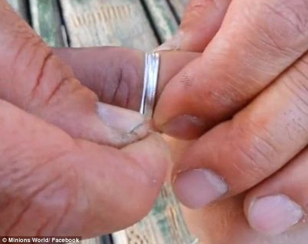 Amazing trick to remove a ring that is stuck on your finger Trend